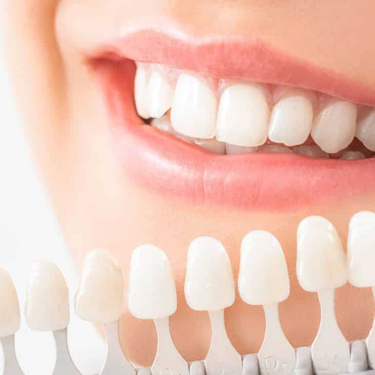 4 Different Teeth Colors and Their Oral Health Implications