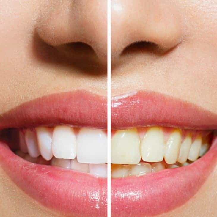 4 Causes of Yellow Teeth