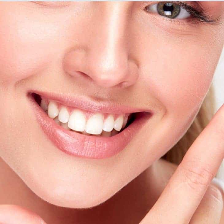 Teeth Whitening Aftercare Tips