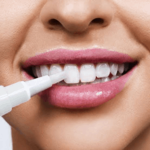 Certain procedures must be followed on how to whiten yellow teeth using pen whiteners