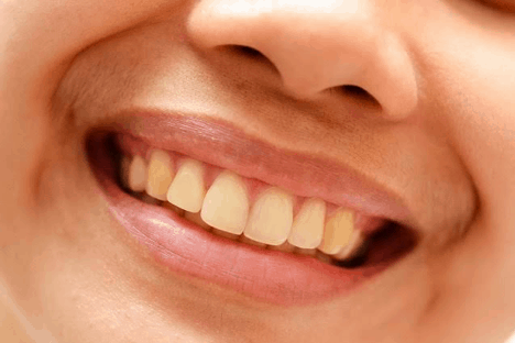 According to scientists, yellow teeth means strong teeth