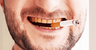 Tar and nicotine in the cigarettes are one of the causes of yellow teeth