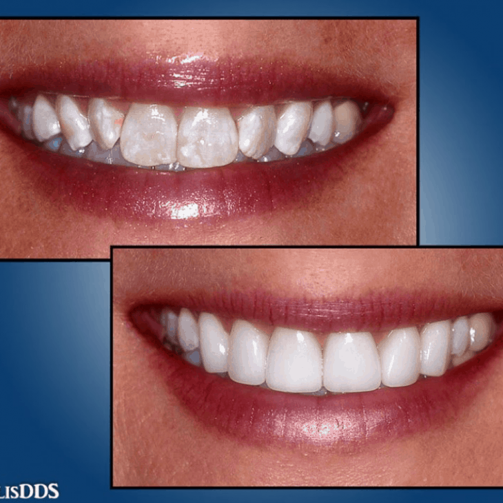 Some effective teeth whitening methods could lessen the impact of white spots on teeth