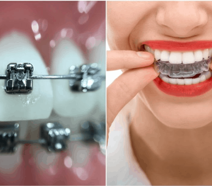 Using teeth whitening strips while having braces could be difficult