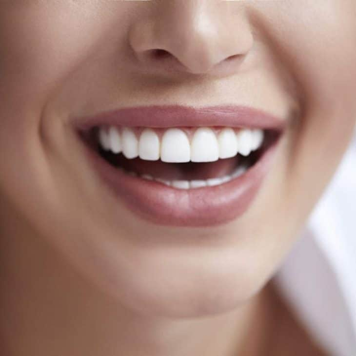 How to Whiten Teeth? Natural / OTC Products