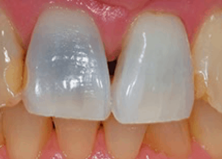 There are a few ways to diminish the effects of black tooth