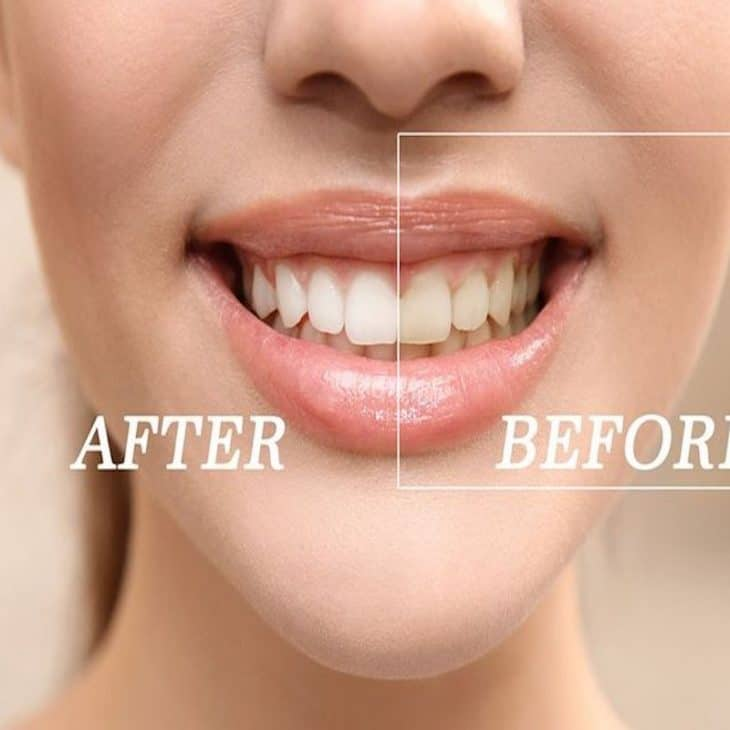How To Whiten Black Stains on Teeth?